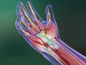Carpal Tunnel Syndrome 3d imgae
