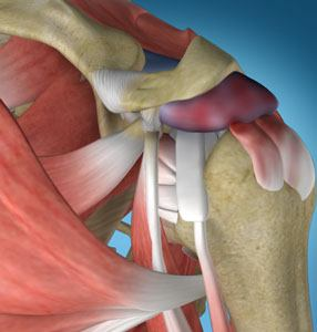 Shoulder Impingement 3d imgae